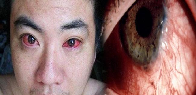 هكذا تصابون بسرطان العين.. انتبهوا!