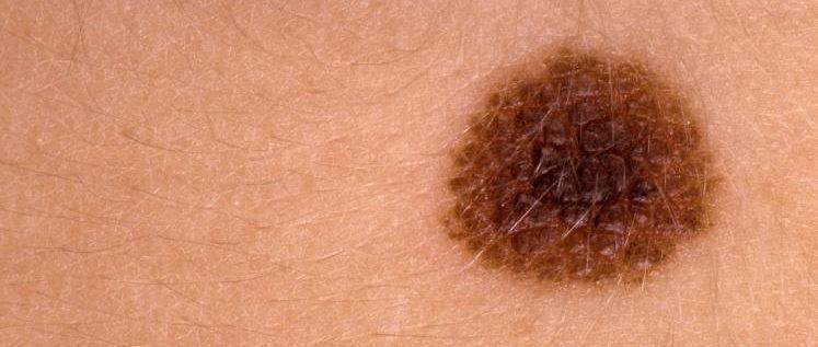تغير الشامات قد يشير لسرطان الجلد