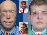 """بالصور: أنجح عملية """"زرع وجه"""" والمتبرع شاب توفي في حادث!"""