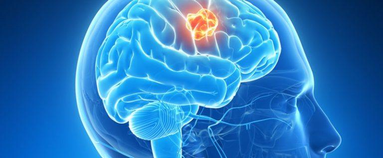 """الورم الدماغي يتسبب في سلوك """" فرط التدين """" المفاجئ عند المرأة"""