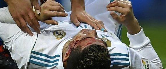 بالفيديو رونالدو يتعرَّض لإصابة دامية ويستعين بهاتف لرؤية ما حلَّ به