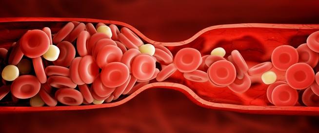 الجلطة الدموية: كيف تكتشفها في جسمك؟