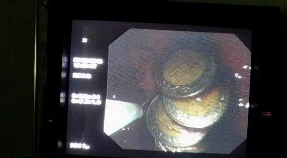 استخراج 20 جنيها معدنية من معدة طفل مصري