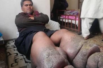 بعوضة تقعد رجلا 5 سنوات وتصيبه بداء الفيل!