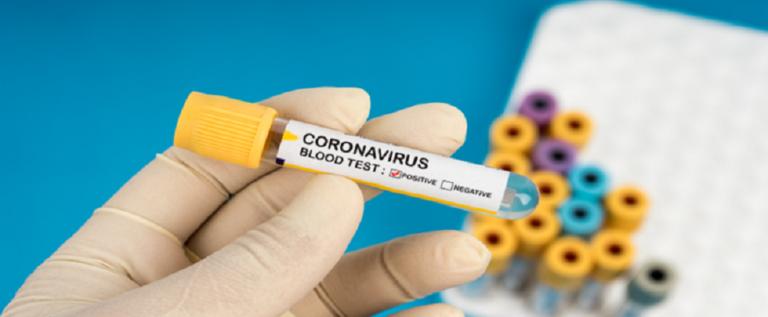 فيروس كورونا أكثر فتكا بالذكور بسبب العادات السيئة