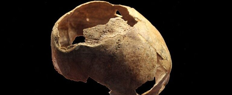 العثور على آثار عملية جراحية جرت قبل 5 آلاف عام لجمجمة بمشرط حجري